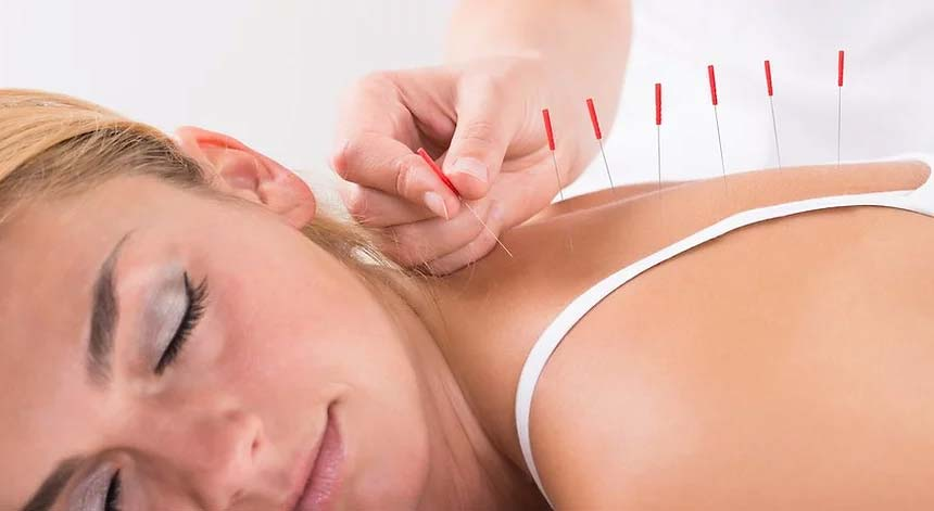 Woman laying face down looking relaxed as she receives acupuncture treatment in Melbourne with acupuncture needles applied to her back for pain relief and management