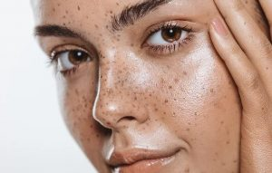 Woman's face glowing healthily from great skin care treatment which a skin clinic can provide.